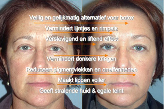 reverta-anti-aging-cream-voor-en-na