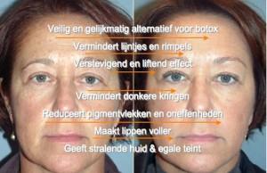 reverta-anti-aging-cream-voor-en-na